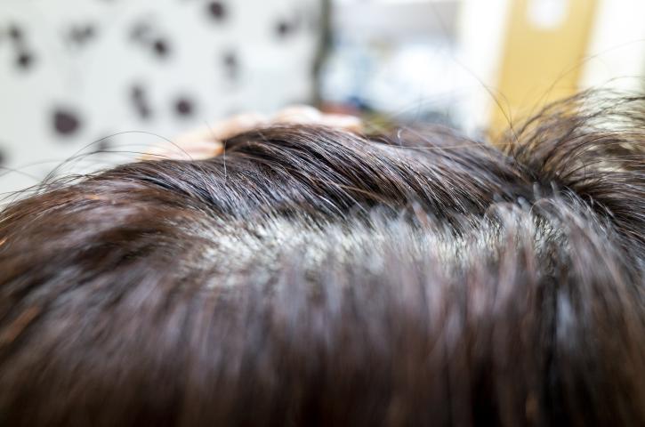 短い白髪を染める場合の3つの対処法!メリットやデメリットも知るべき